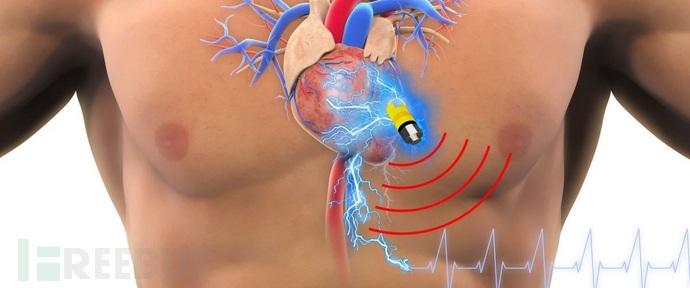 心脏起搏器.jpg
