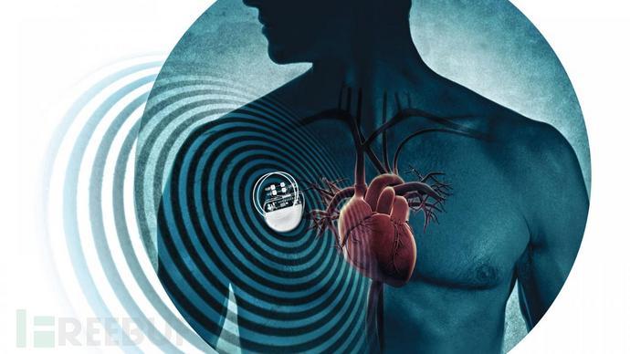 sn-pacemaker_0.jpg